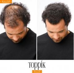 Poudre Toppik, masquer perte cheveux, calvitie, homme, femme, Elite Hair International